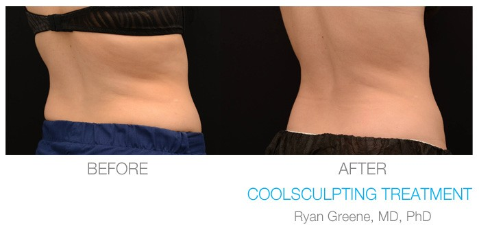 Coolsculpting Before And After Gallery Fort Lauderdale