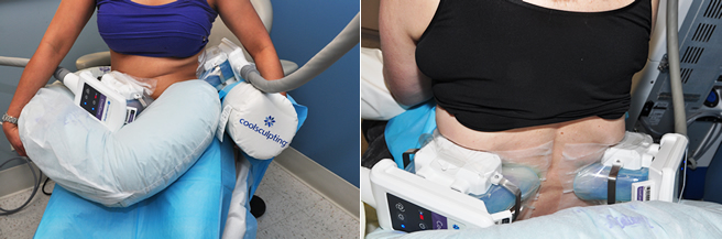 Dual CoolSculpting Fort Lauderdale