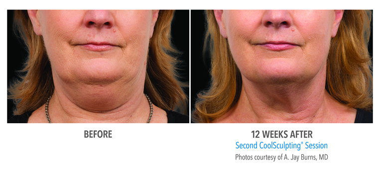 Coolsculpting Weston Double Chin