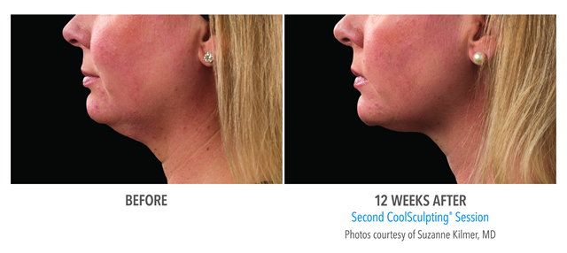 Chin Coolsculpting Weston