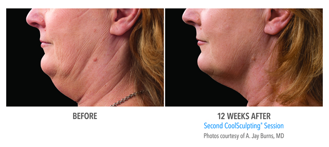CoolMini CoolSculpting for the Chin
