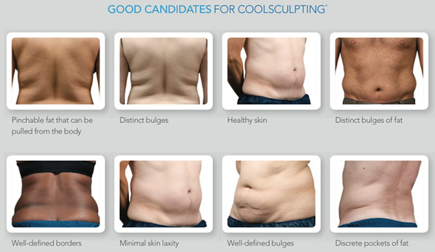 Candidate for Coolsculpting Fort Lauderdale