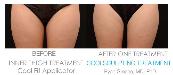 Coolsculpting Inner Thigh before and after