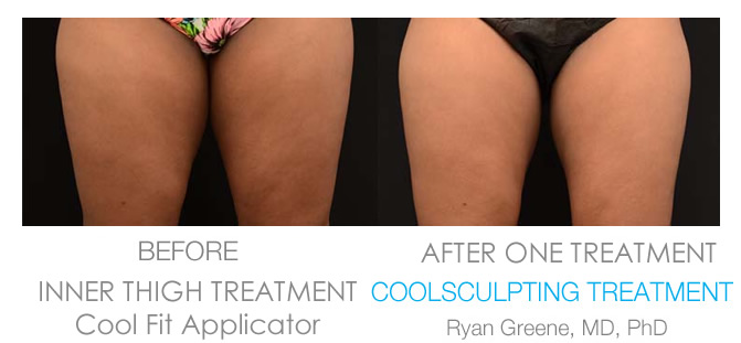 Coolsculpting Weston Inner Thigh before and after