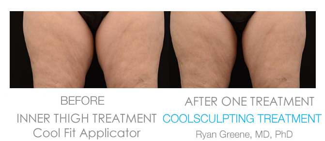 Ft Lauderdale Coolsculpting Inner Thigh before and after