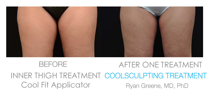Coolsculpting Inner Thigh before and after Weston