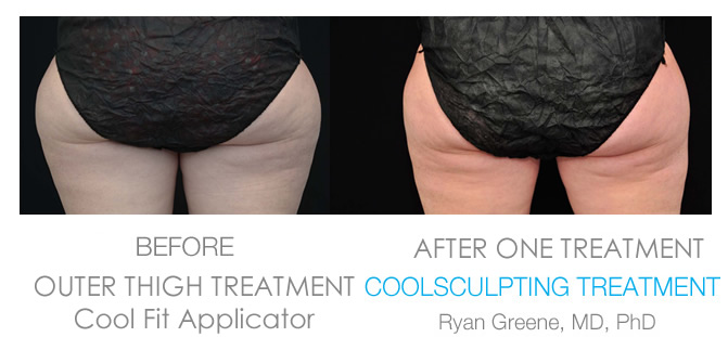 Coolsculpting Outer Thigh before and after Weston