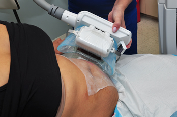 Eight Step Preparation Coolsculpting Fort Lauderdale West